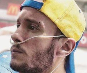 Falleció Gustavo Ramayo, estudiante que contrajo rara enfermedad por inhalar bombas lacrimógenas