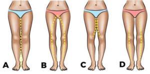 A, B, C o D: La forma de las piernas pueden decir mucho sobre el libido de una mujer