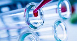 Prueban el plasma sanguíneo como tratamiento contra el coronavirus en Estados Unidos
