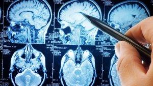 La extraña pregunta de una prestigiosa revista de ciencia: ¿Es realmente necesario el cerebro?