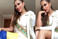 FOTO: Mala jugada del vestuario deja al descubierto los senos de esta miss venezolana