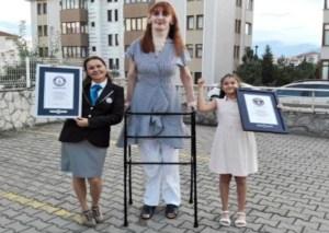 Burlas y una rara enfermedad: La dura vida de la mujer más alta del mundo